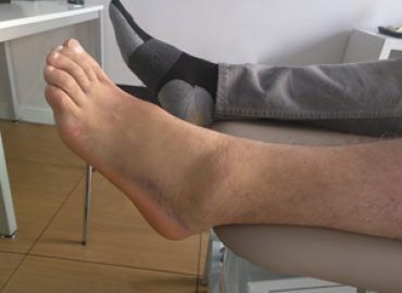 Tipos de Esguinces de tobillo